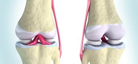 Osteoartrita terapiei leechilor genunchiului