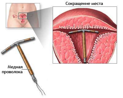 sterilet mirena pret farmacie