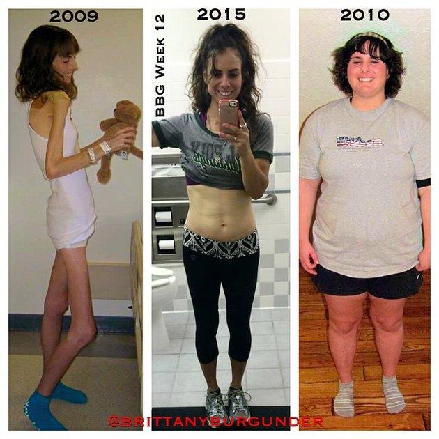 Последствия от похудения