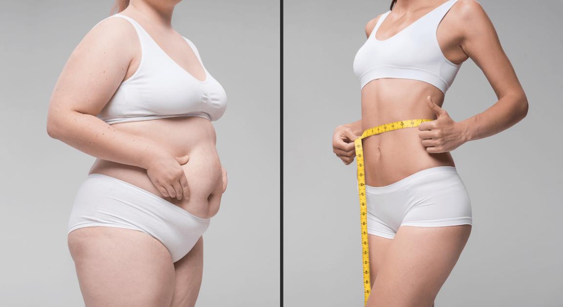 cum poate o femeie obeză să piardă în greutate)