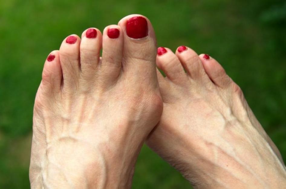 ступни ног женские фото намяла заключенных решили