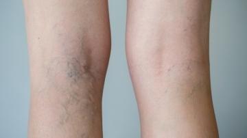 varicose genunchi ce să facă fondurile medicinei tradiționale din varicoză